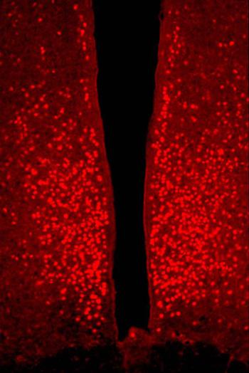 estrogen-receptor_3