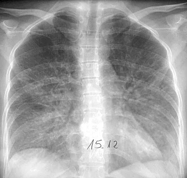 Viral pneumonia