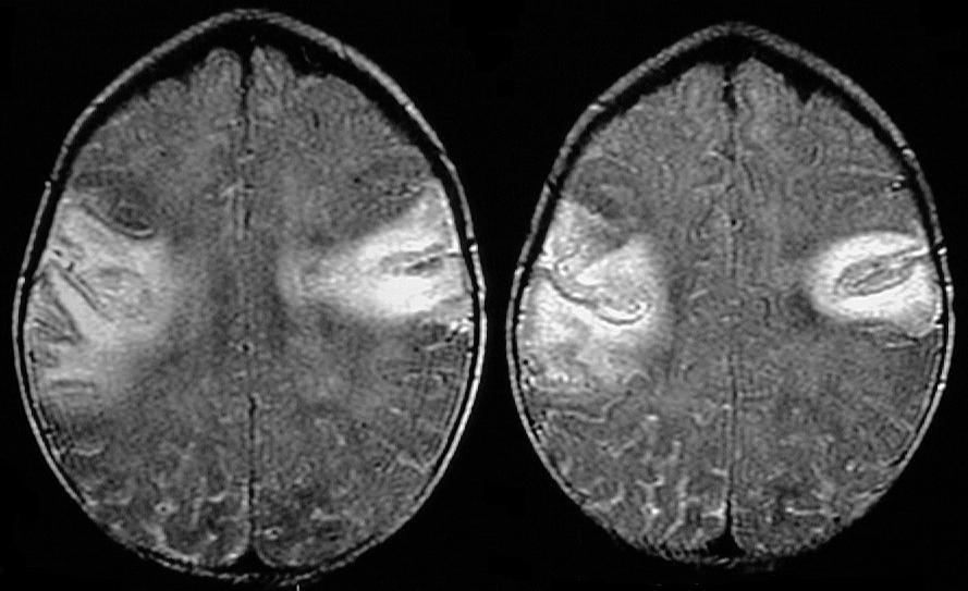 Meningitis-brain