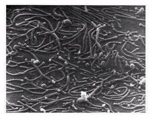 Mycoplasma Pneumoniae2