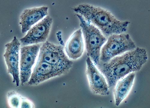human diploid cells