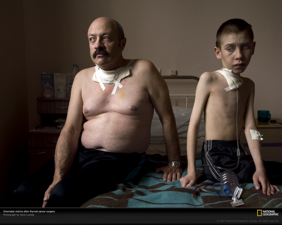 thyroid-cancer-from-the-chernobyl-radioactivity